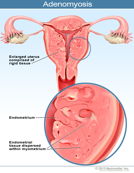 Mi az a mióma? Az adenomyosis visszeres kezelése