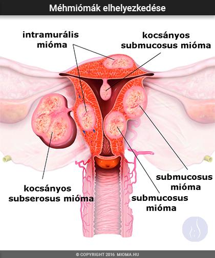 A méhben lévő papillómák okai és kezelése eltávolított hólyag papilloma