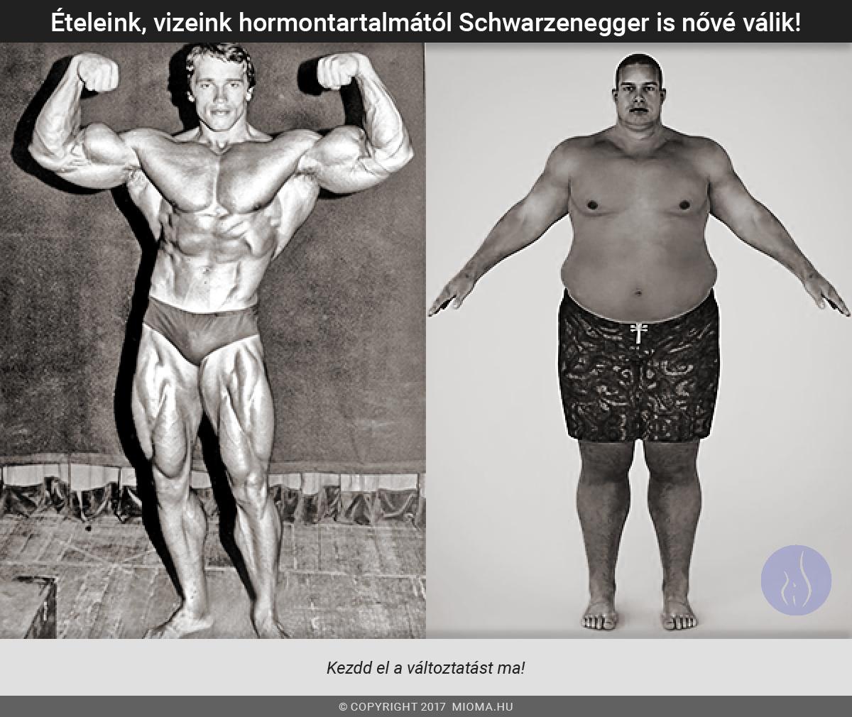 ösztrogféndominancia-nőies-férfiak