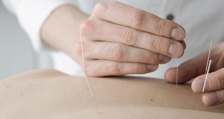 akupunktur_mioma.hu