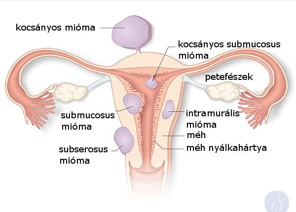 miómák-elhelyezkedése-mioma.hu-kicsi